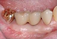 歯肉移植2